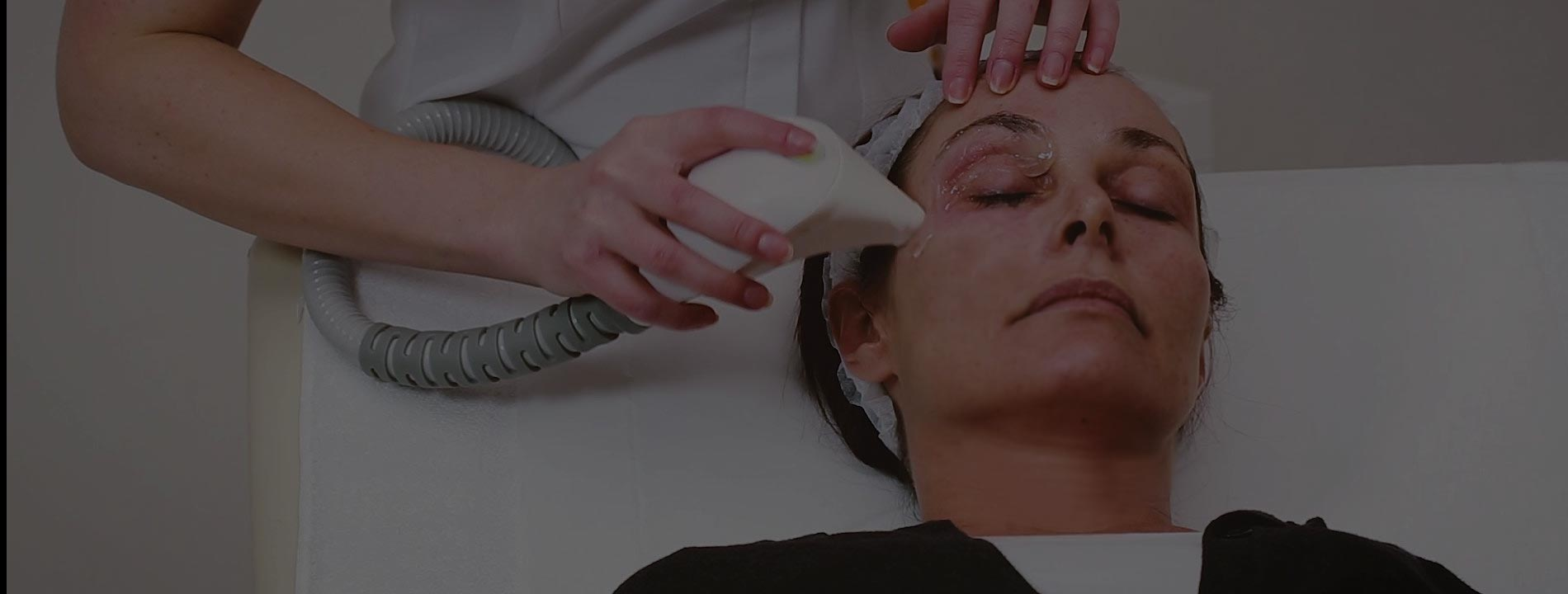 Intensify  Radiofrequency Skin Tightening & Resurfacing
