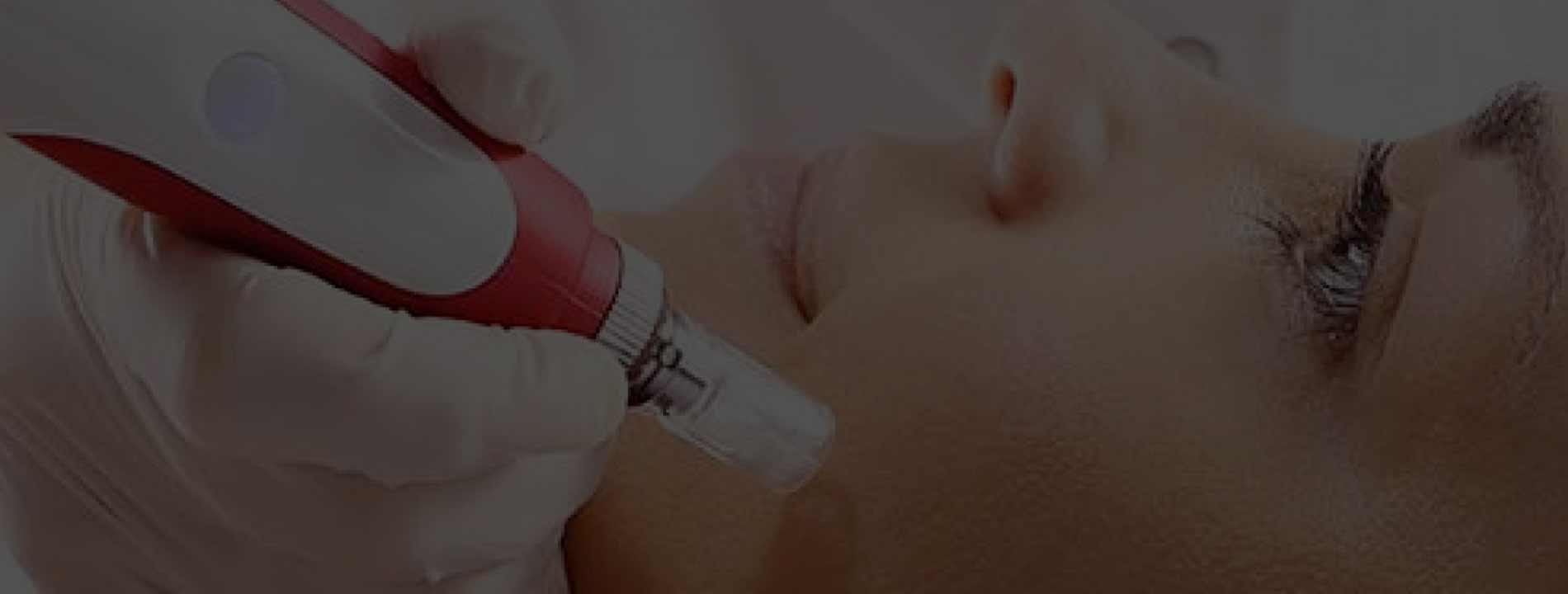 Micro-Needling for Collagen Induction