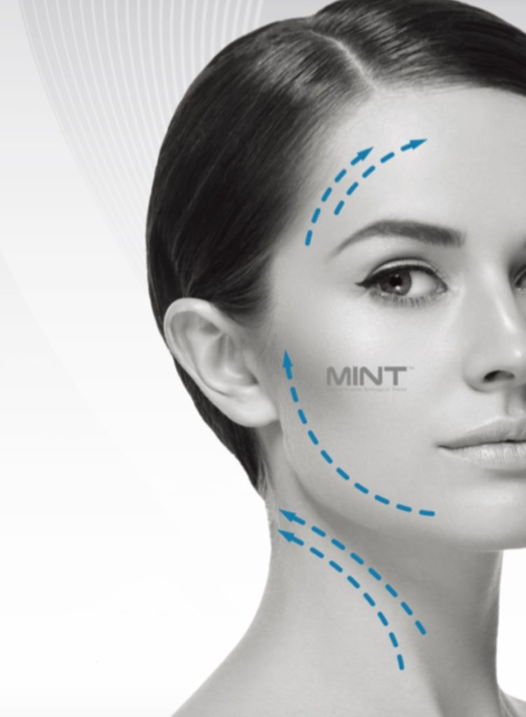 MINT NON-SURGICAL THREAD LIFT